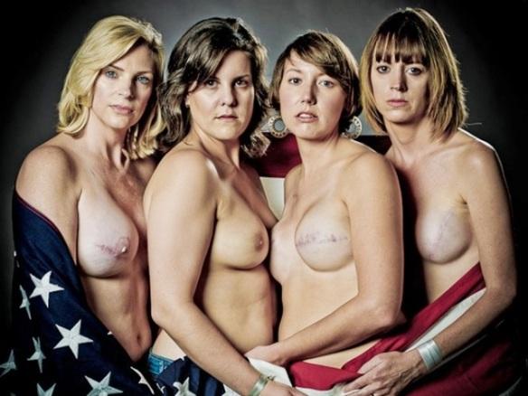 mulheres mastomizadas EuGordinhas